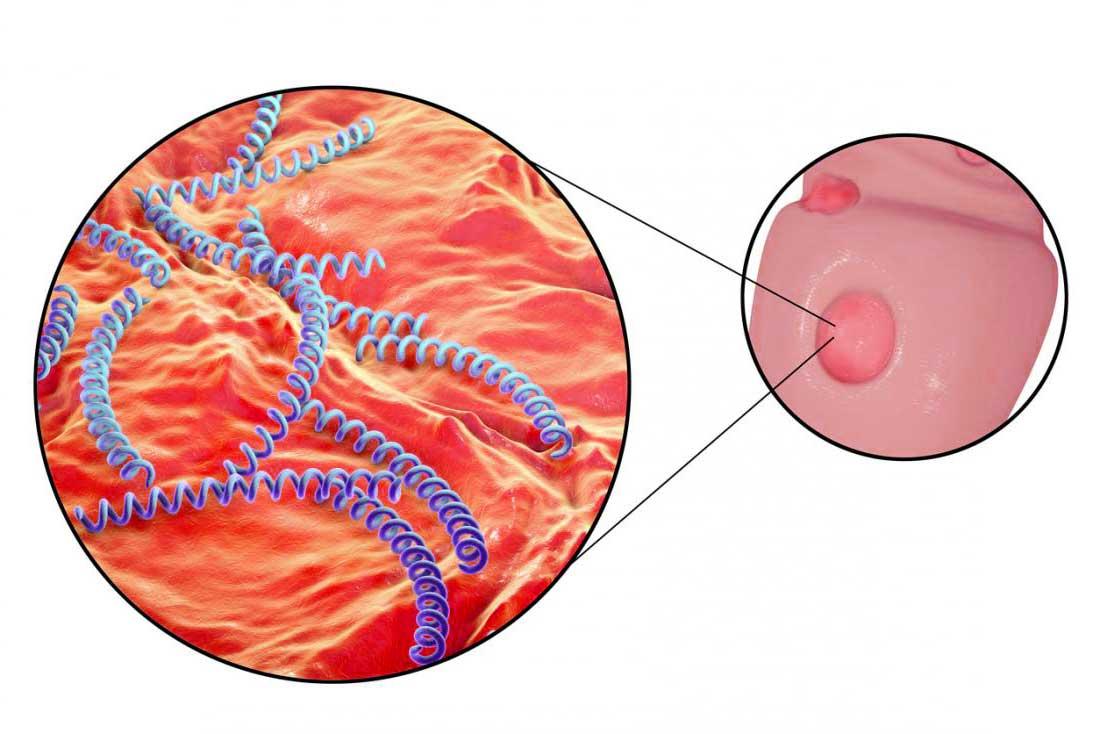 جرثومة مرض الزھري