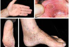 مرض الزھري