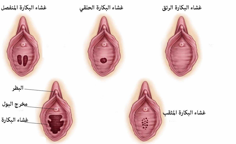 أنواع غشاء البكارة